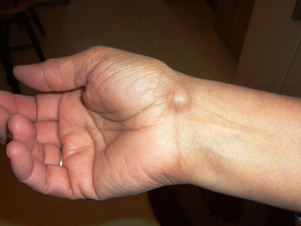 Фиброз кожи фото