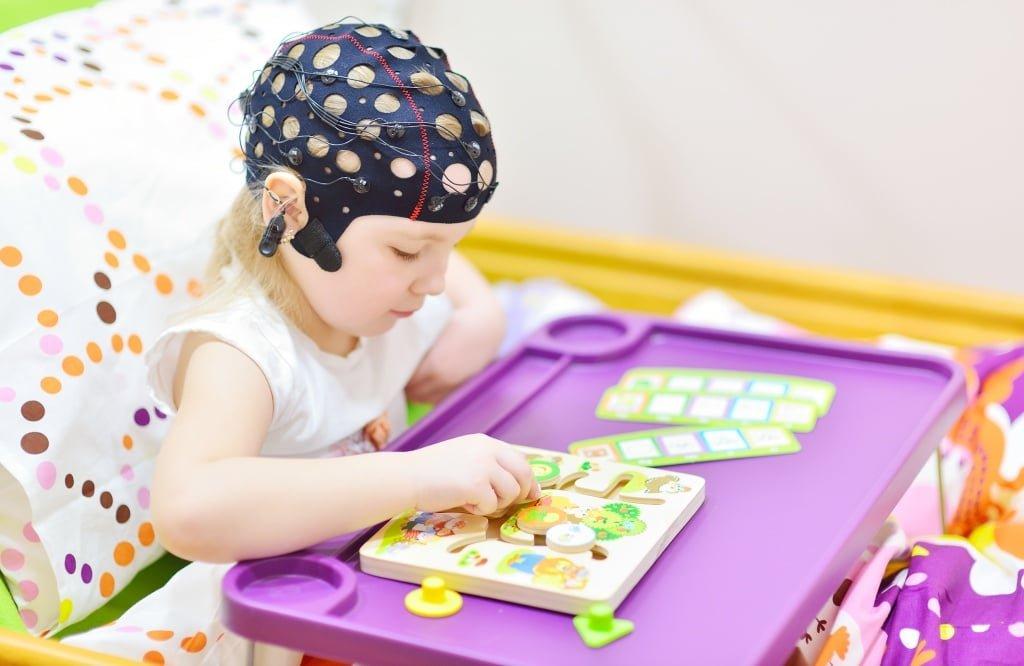 Эпиактивность на ЭЭГ у ребёнка