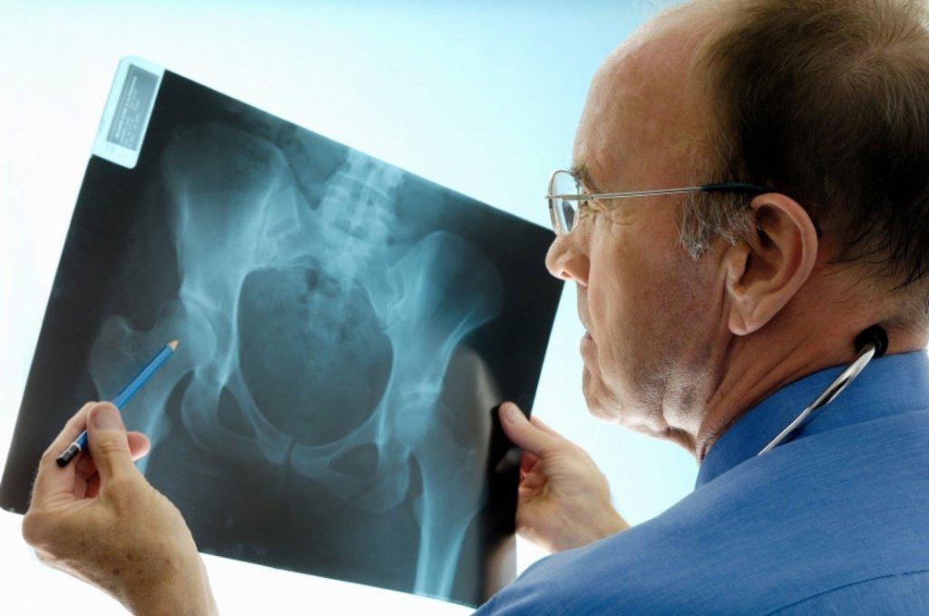 Как лечить смещение тазобедренных суставов