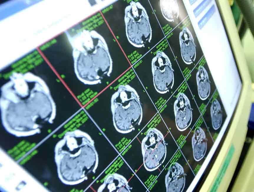 Клиника рассеянного склероза в москве