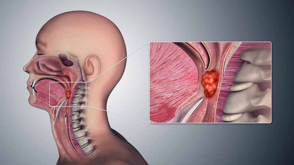 Рак горла фото