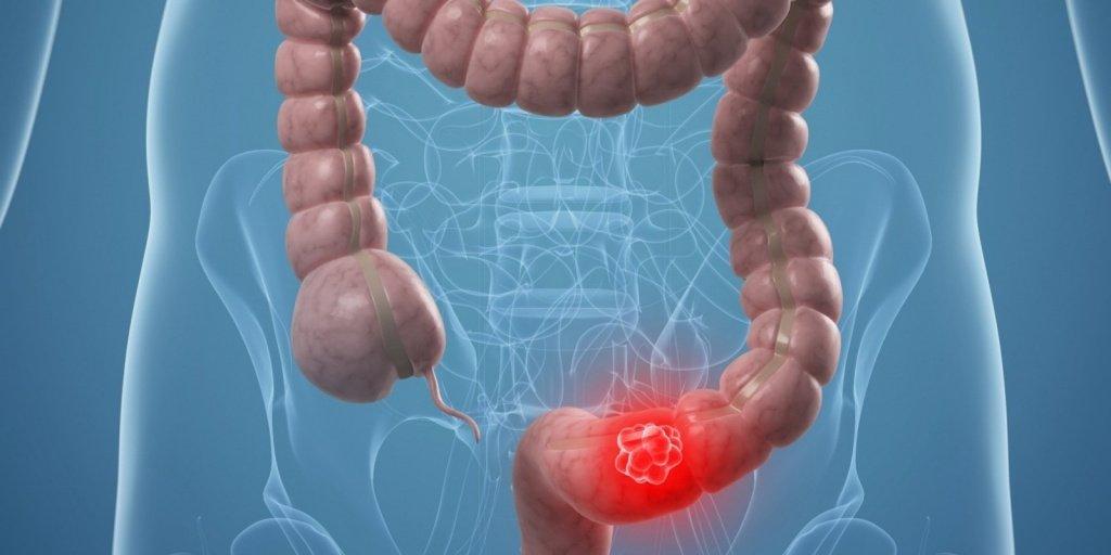 Рак толстой кишки: первые симптомы и лечение