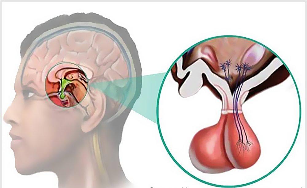 Аденома гипофиза: симптомы и лечение