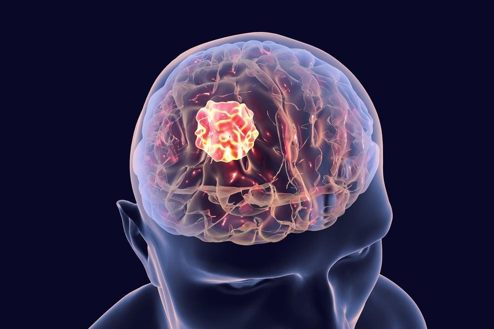 Симптоматическая эпилепсия с генерализованными приступами: причины и признаки