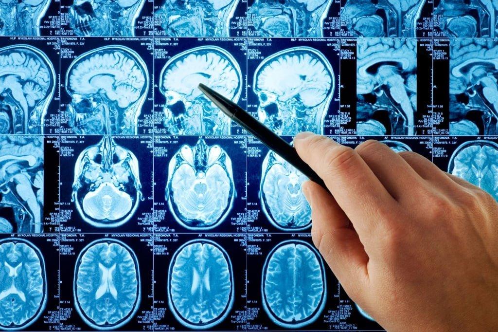 Как определить микроинсульт у человека