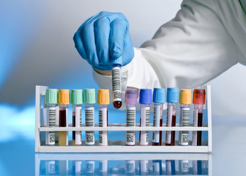 Общие иммуноглобулины класса Е: причины повышения и понижения их уровня
