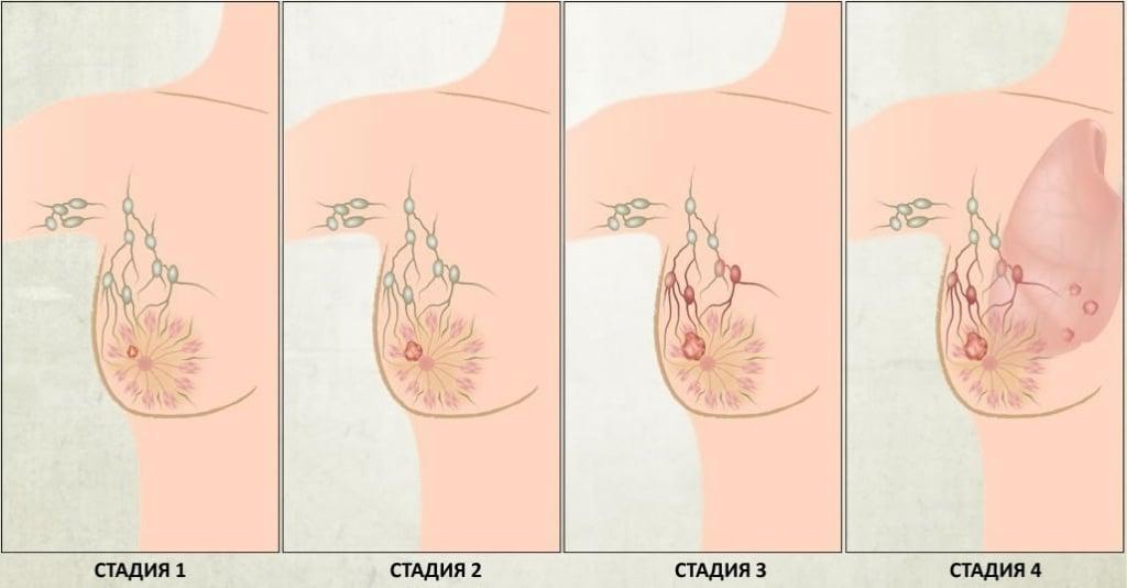 Степени рака молочной железы описание стадии 18
