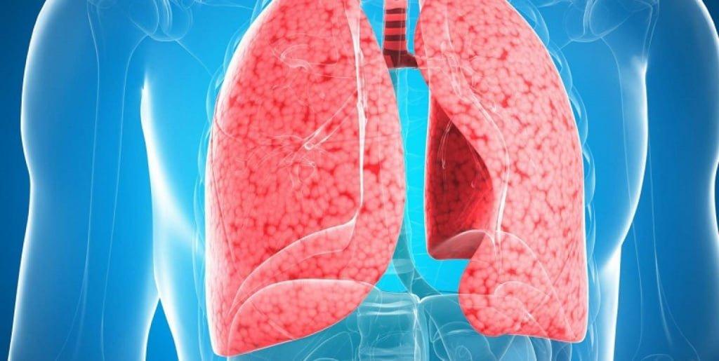 Воспаление легких: симптомы и лечение