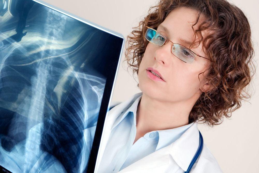 Крупозное воспаление лёгких