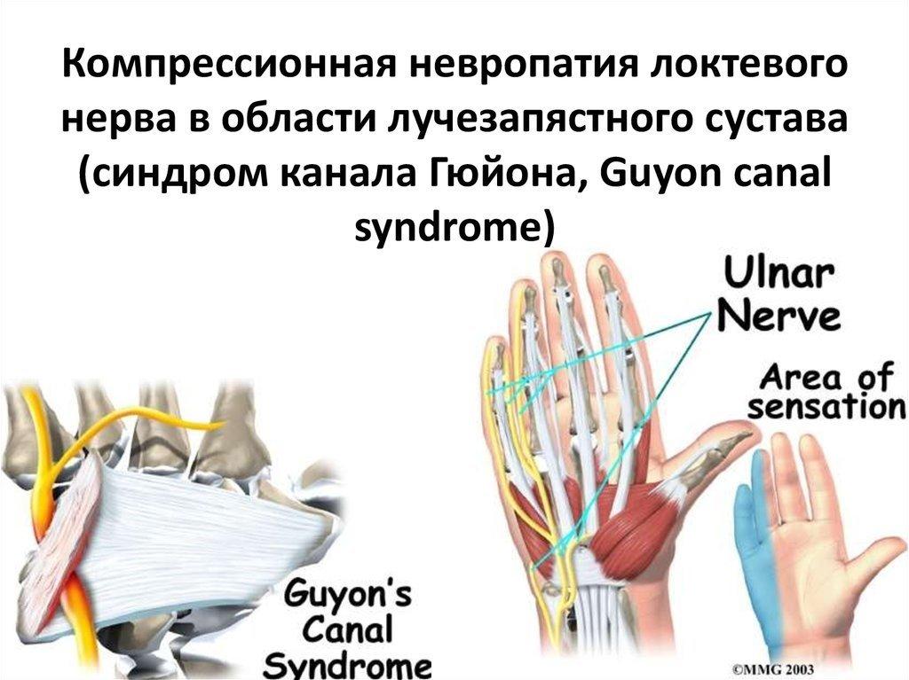 неврит локтевого нерва картинка картинок фланелегра рассказывание