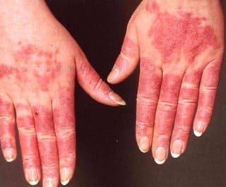 системная красная волчанка, симптомы и лечение, лечение в москве, запись на прием, цена