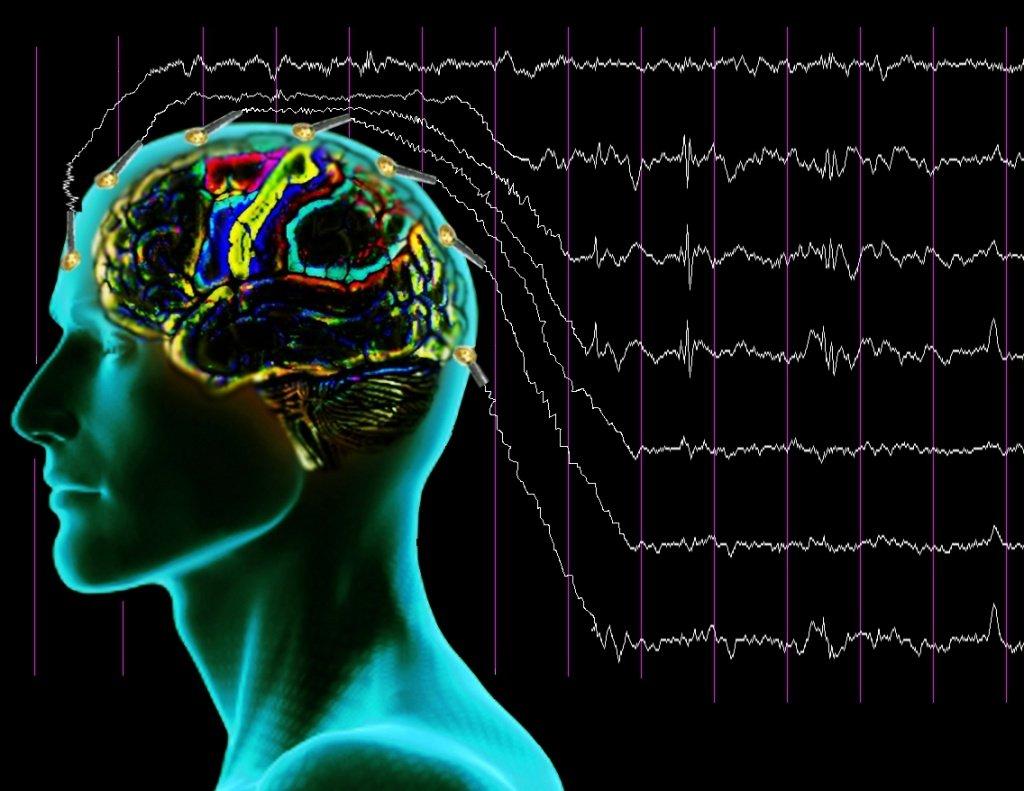 Расшифровка показателей ЭЭГ головного мозга