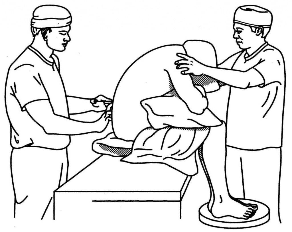 Постановка эпидурального катетера