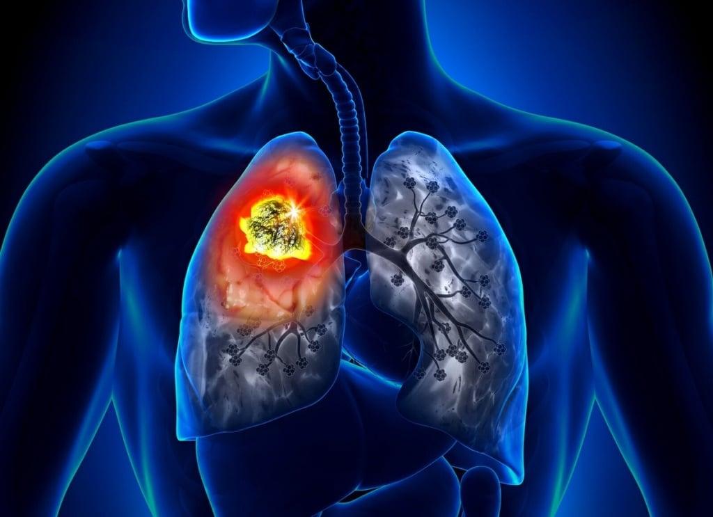Воспаление лимфоузлов в легких