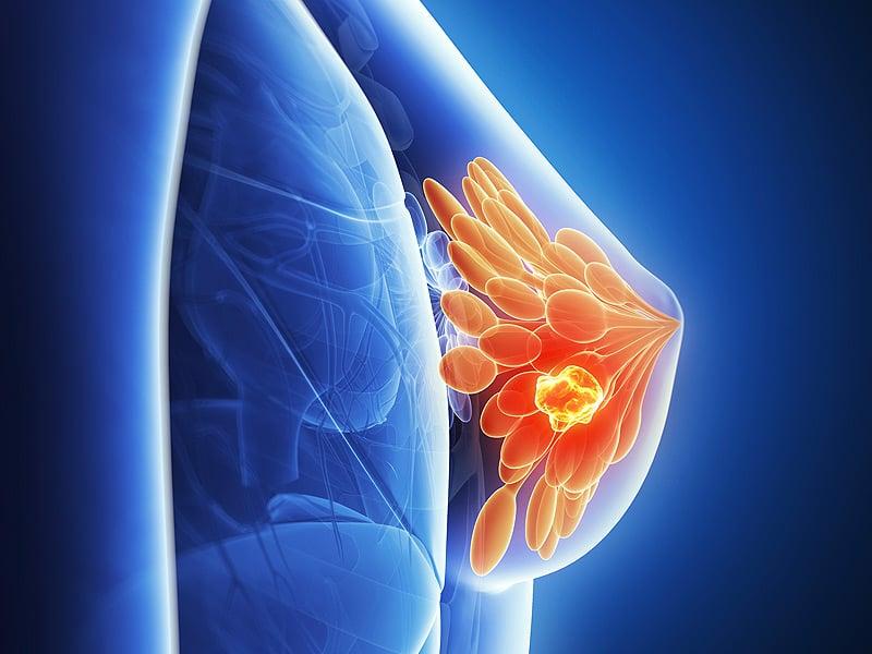 Тройной негативный рак молочной железы