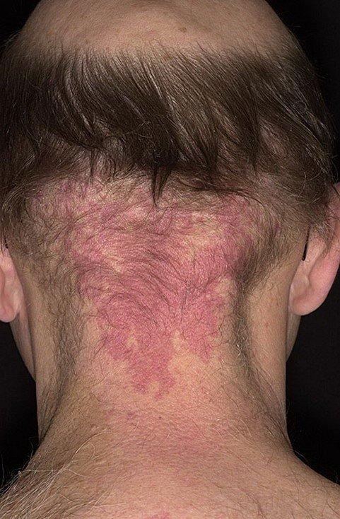 Гемангиома кожи у взрослых: фото новообразований