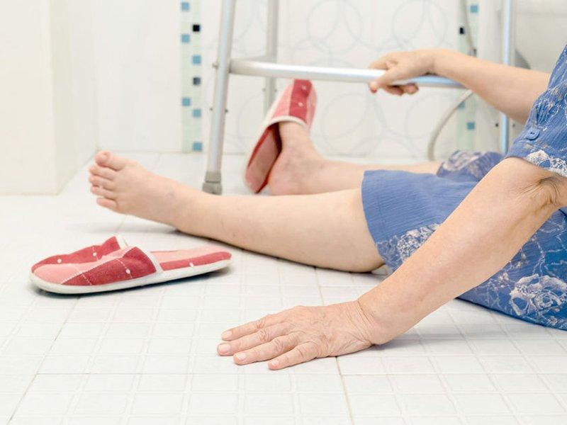Причины отека ноги при переломе шейки бедра thumbnail