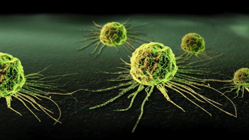 Что такое канцероматоз брюшины при раке