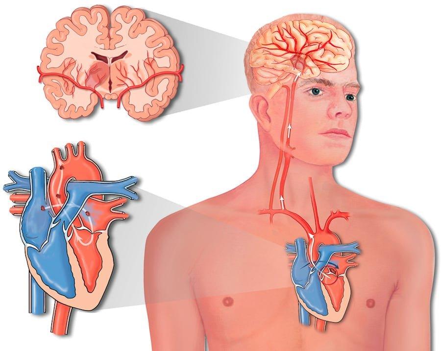 Чем отличается инфаркт от инсульта