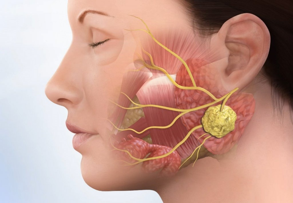 Опухоль слюнной железы – симптомы, причины развития и лечение