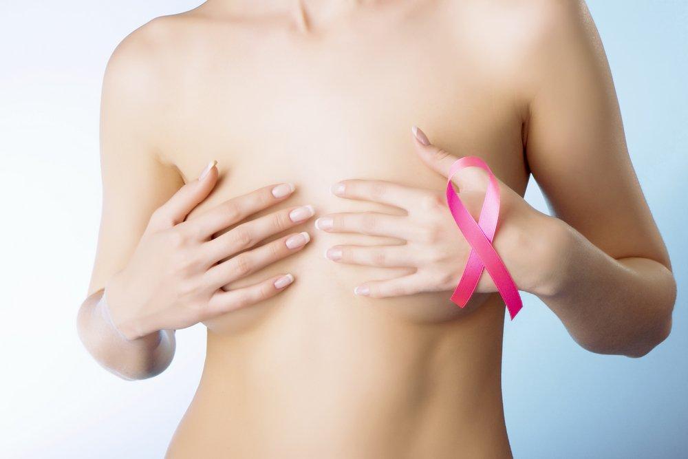 Тубулярная карцинома молочной железы