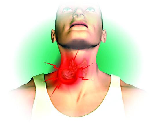 Последствия рака горла