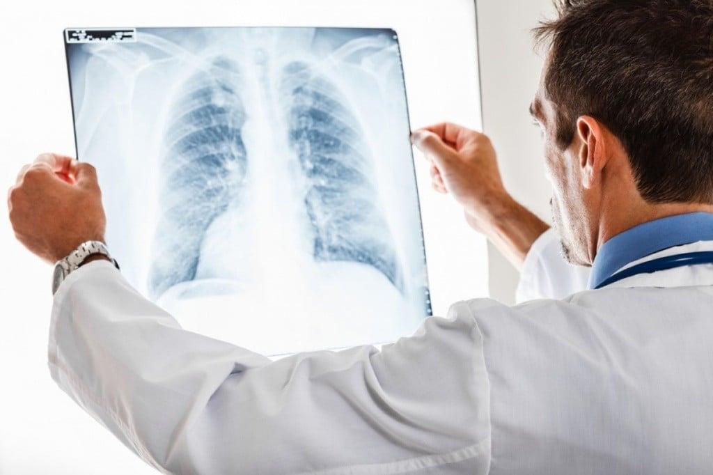Пневмония: сроки лечения заболевания