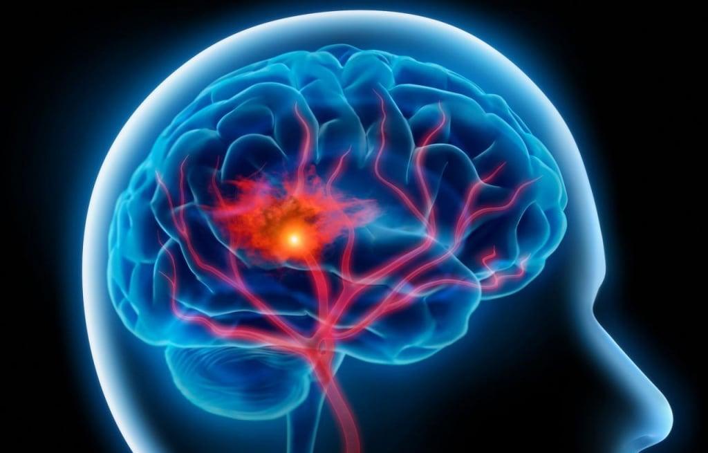 Транзиторная ишемическая атака: симптомы, неотложная помощь, лечение