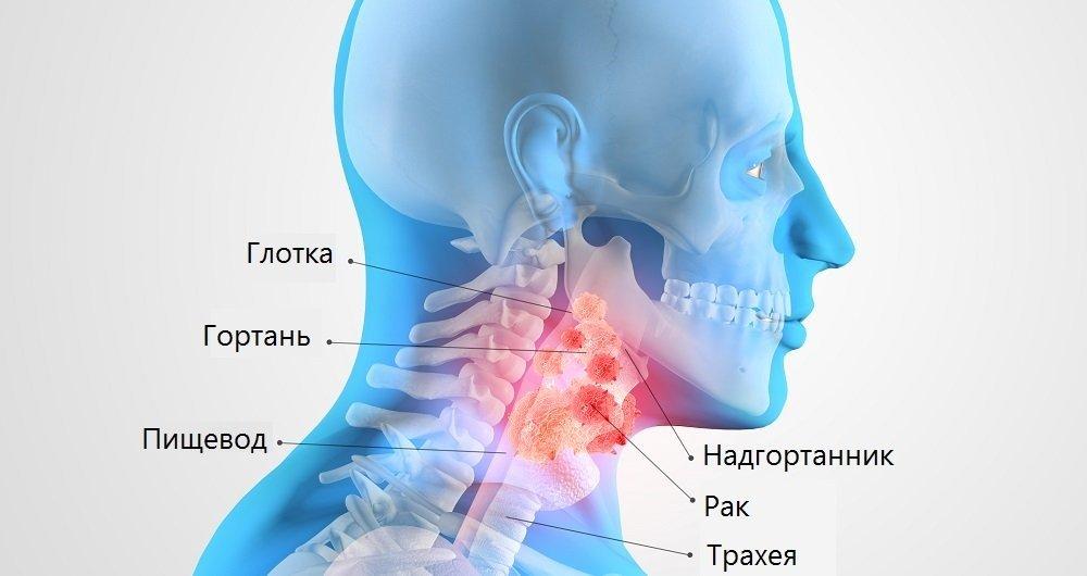 Рак горла: фото больных