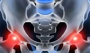 Симптомы и лечение артроза тазобедренного сустава