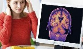 Эпилепсия у женщин