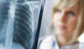 Современные методы диагностики рака легких