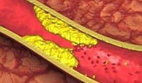 Этиология и патогенез атеросклероза сосудов головного мозга