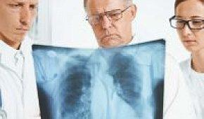 Понятие об атипичной карциноме легких