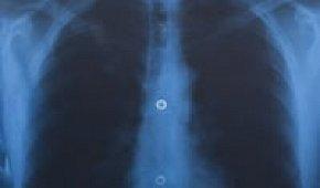 Как выглядит воспаление легких на рентгеновском снимке