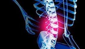 Реабилитация при заболеваниях позвоночника