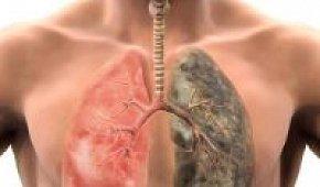 Симптомы рака легких у мужчин: лечение онкологии