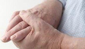 Подагра: симптомы с фото на руках, диагностика и лечение