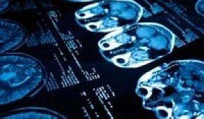 Почему происходит эпилептический припадок: причины и предвестники эпилепсии