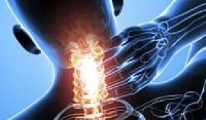 Шейный остеохондроз: причины развития заболевания