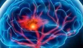 Транзиторная ишемическая атака головного мозга