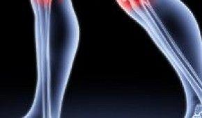 Боль в коленном суставе: причины и лечение патологии