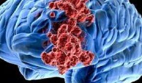 Онкология головного мозга