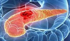 Рак поджелудочной железы: симптомы и лечение